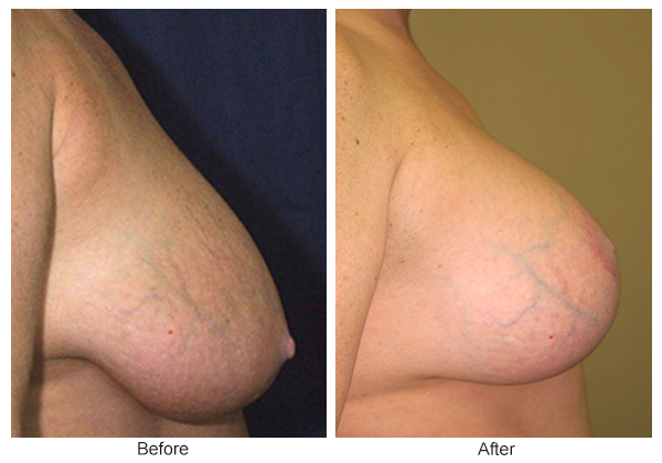 Before & After Breast Reduction 6 – Right