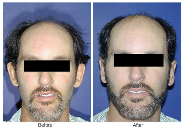 Before & After Otoplasty 12