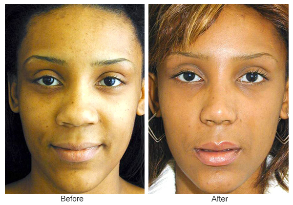 Before & After Rhinoplasty 1- Front