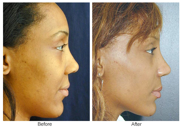 Before & After Rhinoplasty 1 – Right