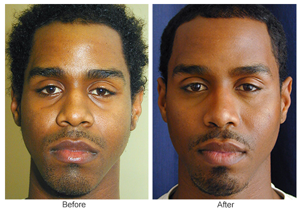 Before & After Rhinoplasty 13 – Front