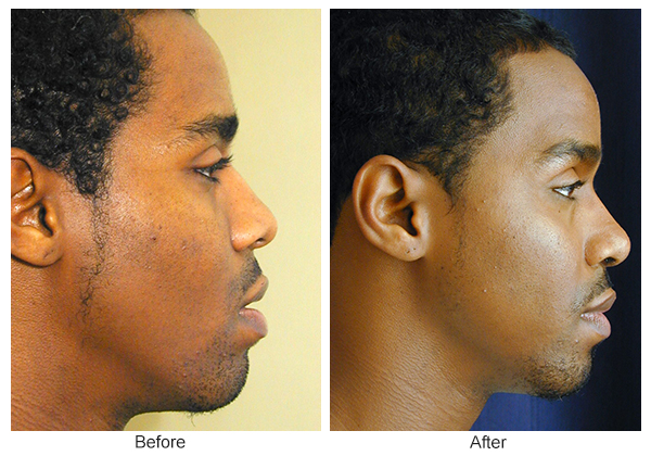 Before & After Rhinoplasty 13 – Right