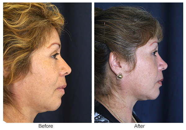 Before & After Rhinoplasty 5 – Right