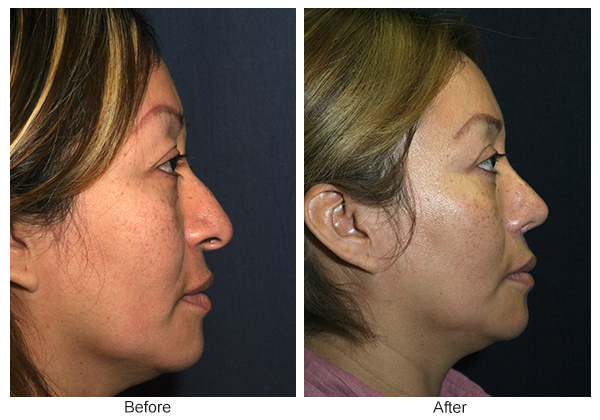 Before & After Rhinoplasty 6 – Right
