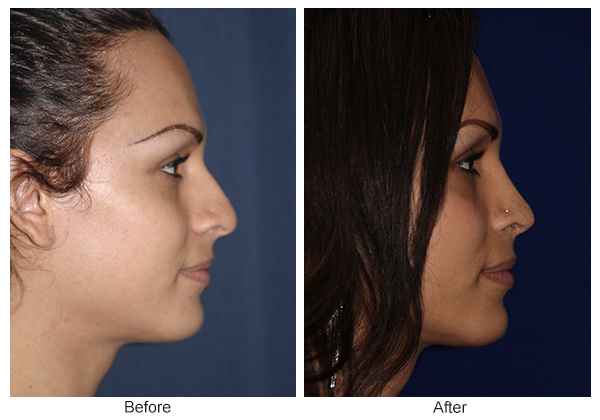 Before & After Rhinoplasty 8 – Right