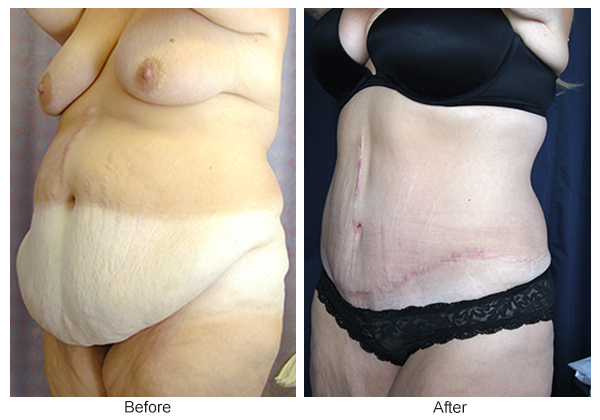 Before and After Body Lift 2 – LQ
