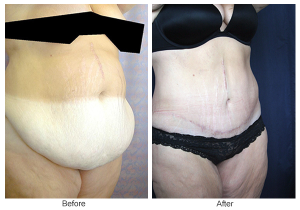 Before and After Body Lift 2 – RQ