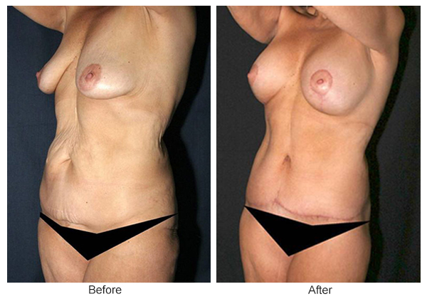 Before and After Body Lift 3 – LQ