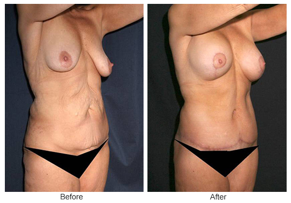 Before and After Body Lift 3 – RQ