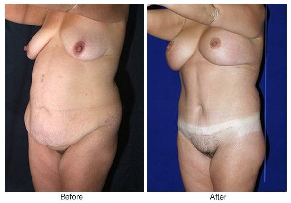 Before and After Body Lift 4 – LQ