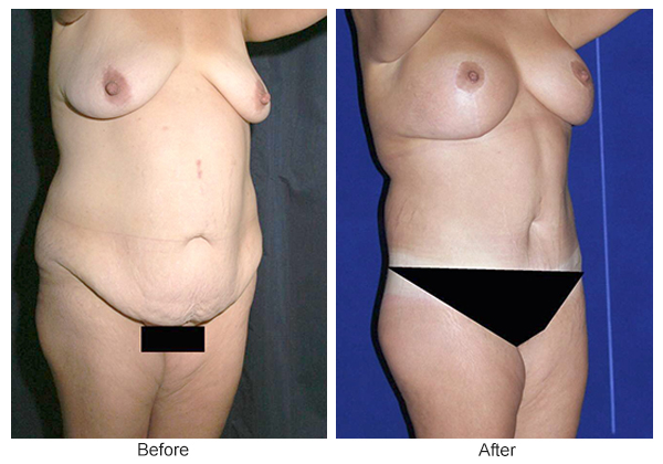 Before and After Body Lift 4 – RQ