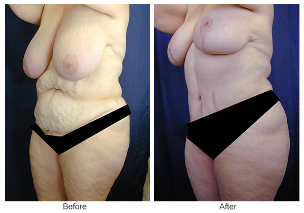 Before and After Body Lift 7 – LQ