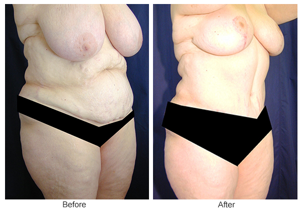 Before and After Body Lift 7 – RQ