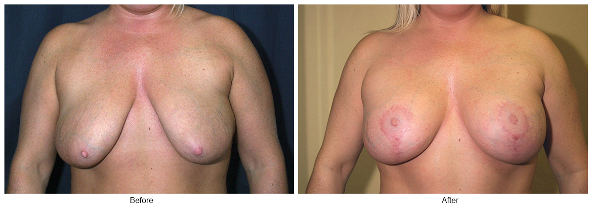 Before and After Breast Lift 1 – F
