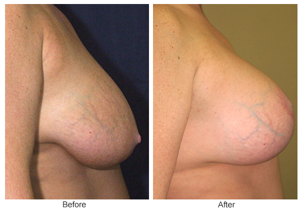 Before and After Breast Lift 1 – R