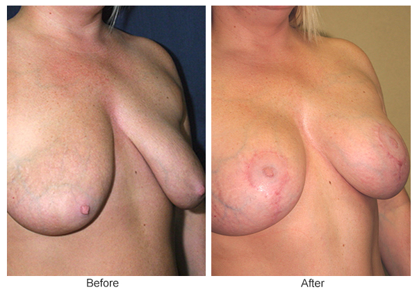 Before and After Breast Lift 1 – RQ