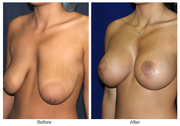Before and After Breast Lift 2 – LQ