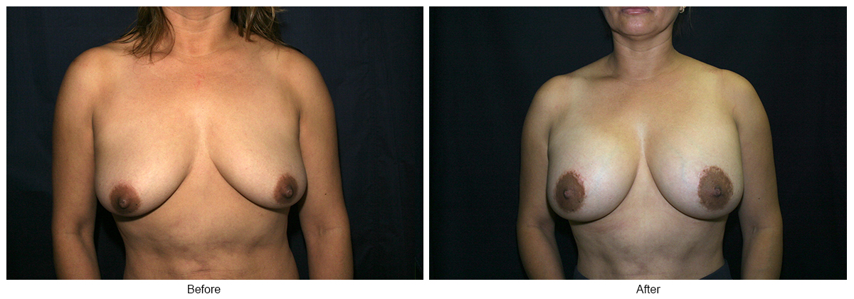 Before and After Breast Lift 3 – F