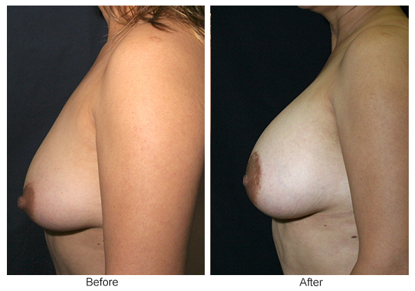 Before and After Breast Lift 3 – L