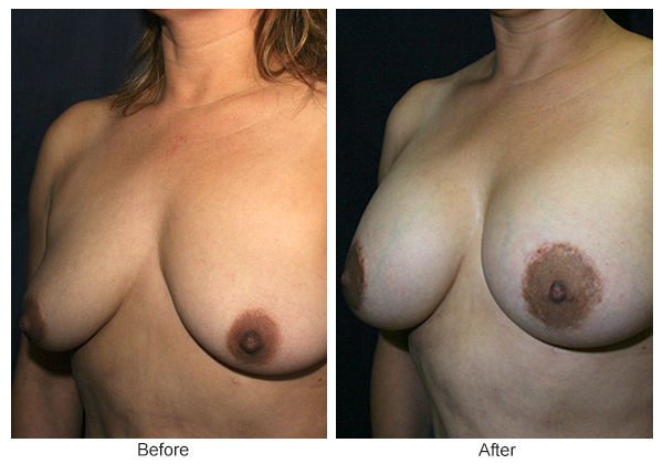 Before and After Breast Lift 3 – LQ