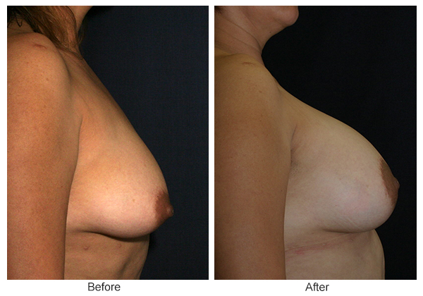 Before and After Breast Lift 3 – R