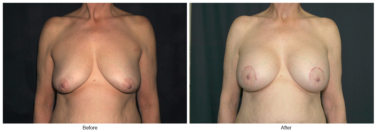 Before and After Breast Lift 5 – F