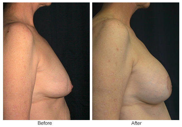 Before and After Breast Lift 5 – R