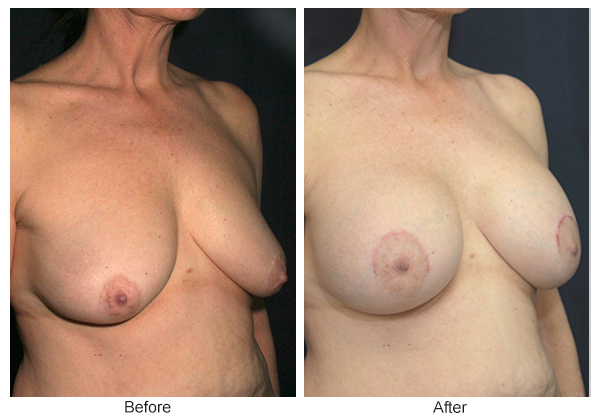 Before and After Breast Lift 5 – RQ
