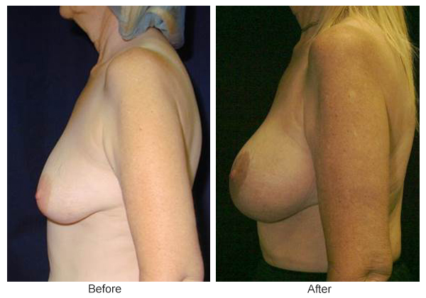 Before and After Breast Lift 6 – L