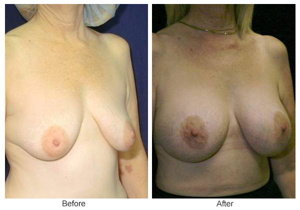 Before and After Breast Lift 6 – RQ