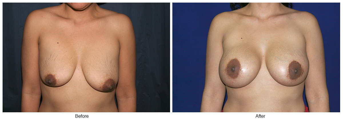 Before and After Breast Lift 7 – F