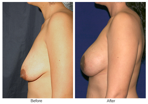 Before and After Breast Lift 7 – L