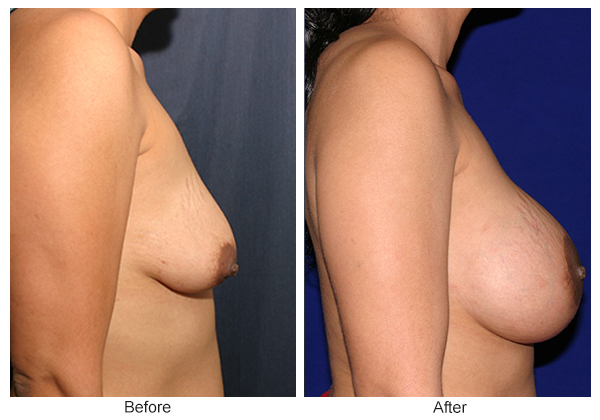 Before and After Breast Lift 7 – R