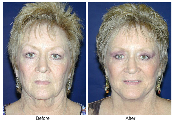 Orange County Cosmetic Surgery Clinique Before & After Facelift 1 - Front