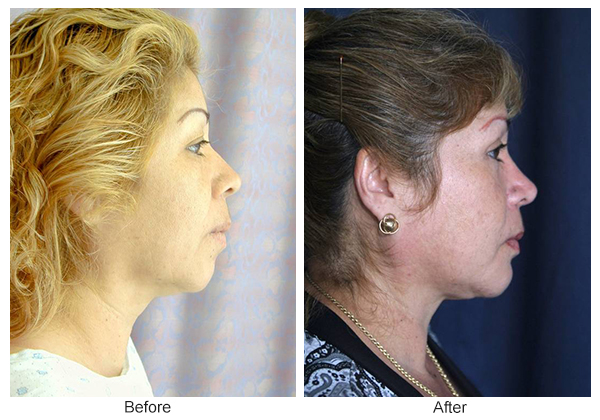 Orange County Cosmetic Surgery Clinique Before & After Facelift 2 - Right