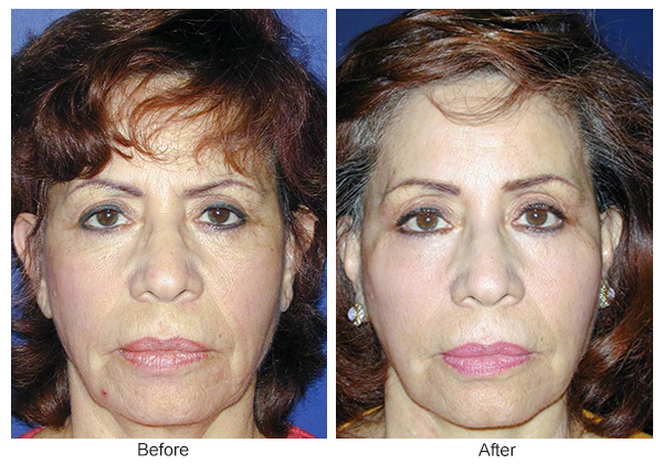 Orange County Cosmetic Surgery Clinique Before & After Facelift 3 - Front