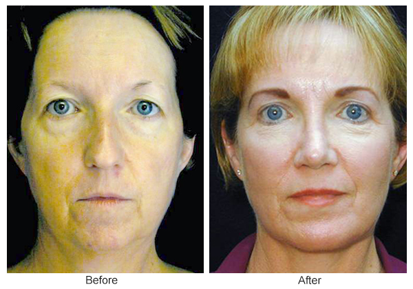 Orange County Cosmetic Surgery Clinique Before & After Facelift 4 - Front
