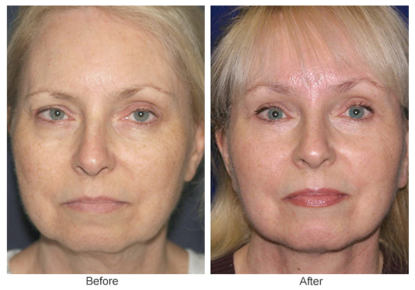 Orange County Cosmetic Surgery Clinique Before & After Facelift 6 - Front