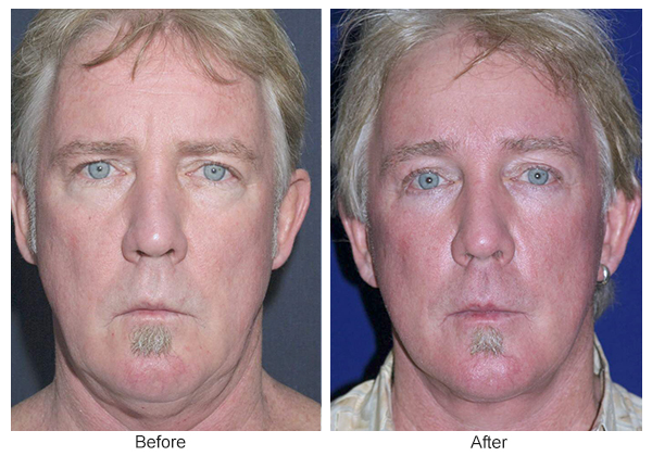Orange County Cosmetic Surgery Clinique Before & After Facelift 7 - Front