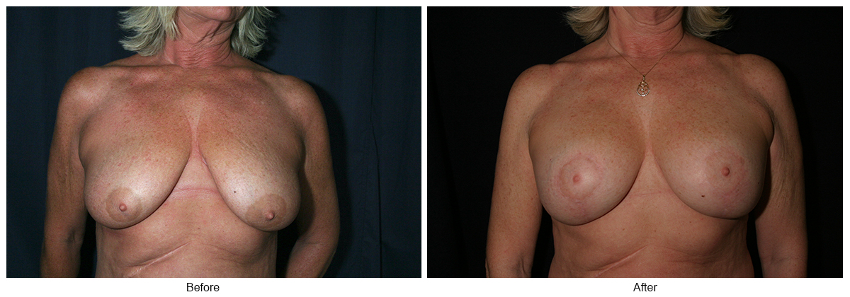 Orange County Cosmetic Surgery Clinique Before & After Anchor Lift 1 - Front