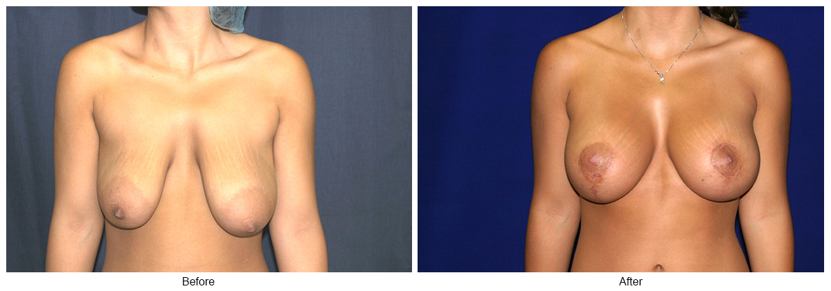 Orange County Cosmetic Surgery Clinique Before & After Anchor Lift 2 - Front