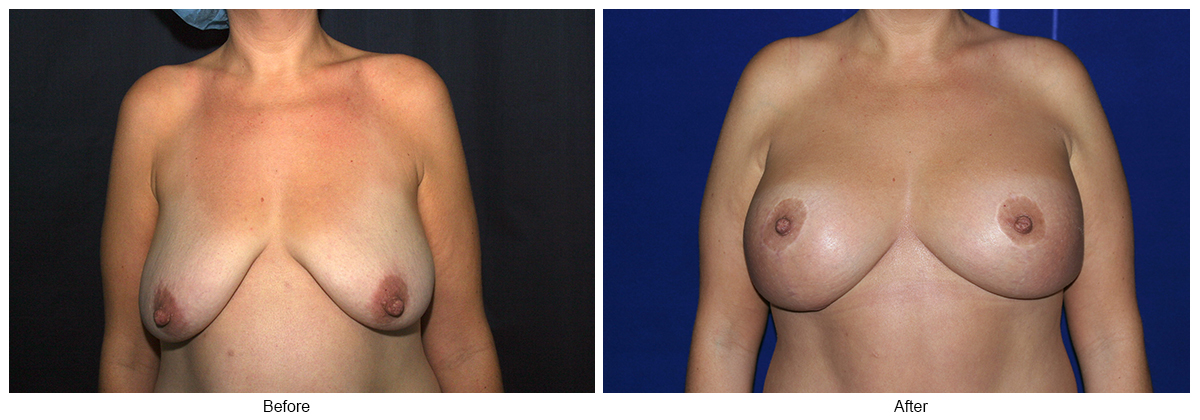 Orange County Cosmetic Surgery Clinique Before & After Anchor Lift 3 - Front