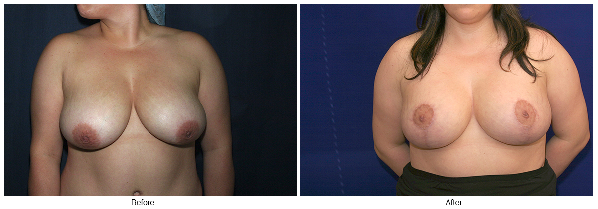 Orange County Cosmetic Surgery Clinique Before & After Anchor Lift 4 - Front