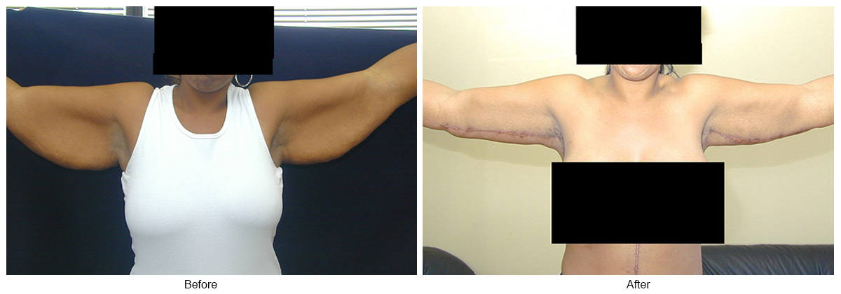 Orange County Cosmetic Surgery Clinique Before & After Arm Lift 1