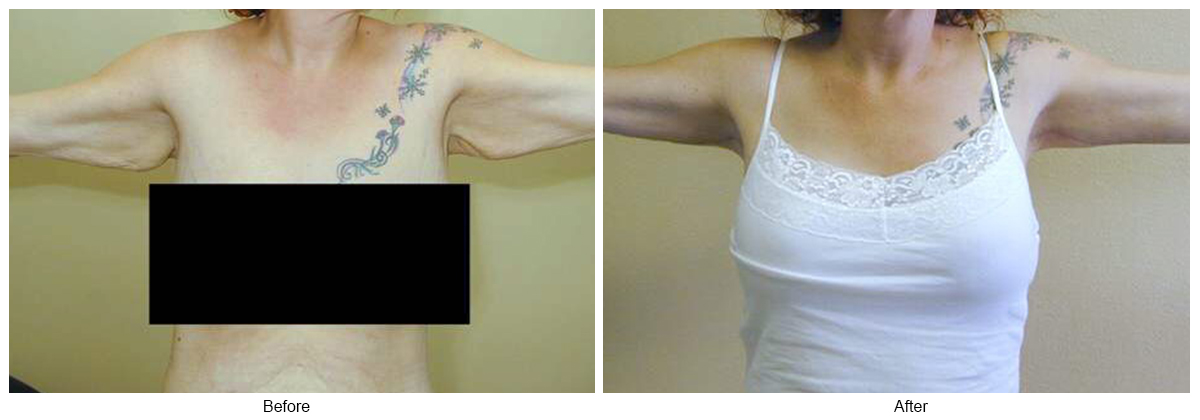 Orange County Cosmetic Surgery Clinique Before & After Arm Lift 3