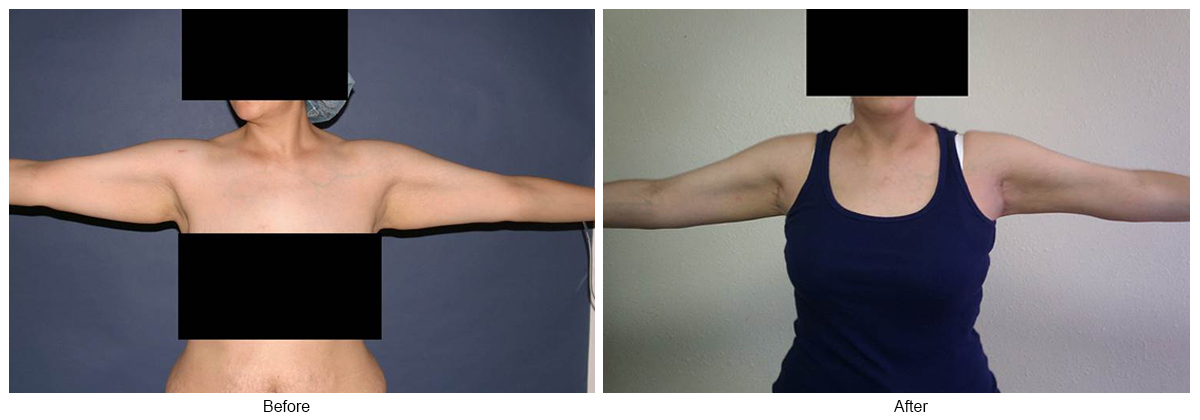 Orange County Cosmetic Surgery Clinique Before & After Arm Lift 4