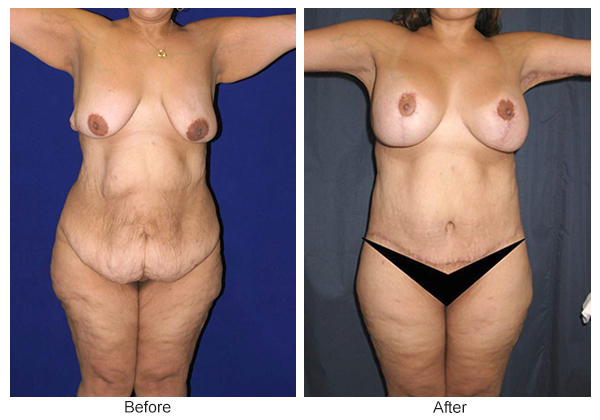 Orange County Cosmetic Surgery Clinique Before & After Body Lift 1 - Front