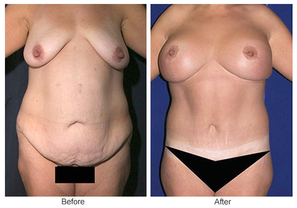 Orange County Cosmetic Surgery Clinique Before & After Body Lift 4 - Front