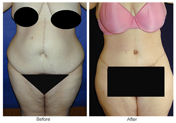 Orange County Cosmetic Surgery Clinique Before & After Body Lift 5 - Front