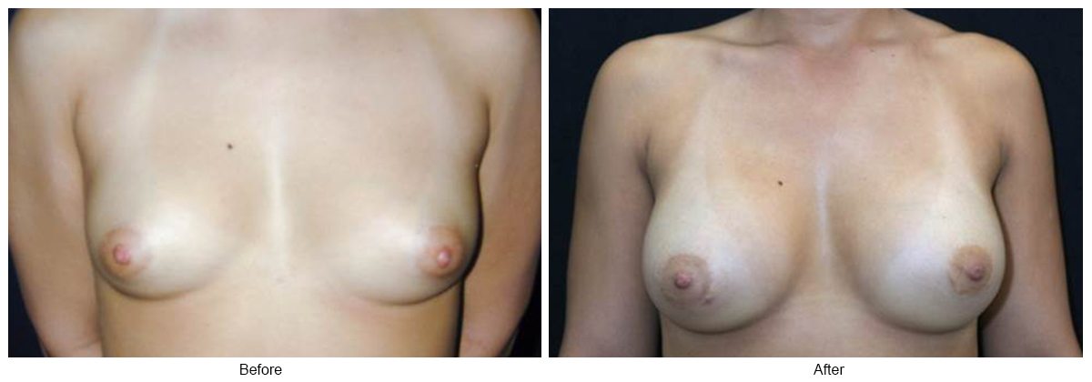 Orange County Cosmetic Surgery Clinique Before & After Breast Augmentation 3 - Front